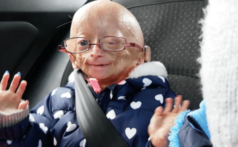 Adalia Rose Bio, Is She Dead or Alive? Here Are The Facts